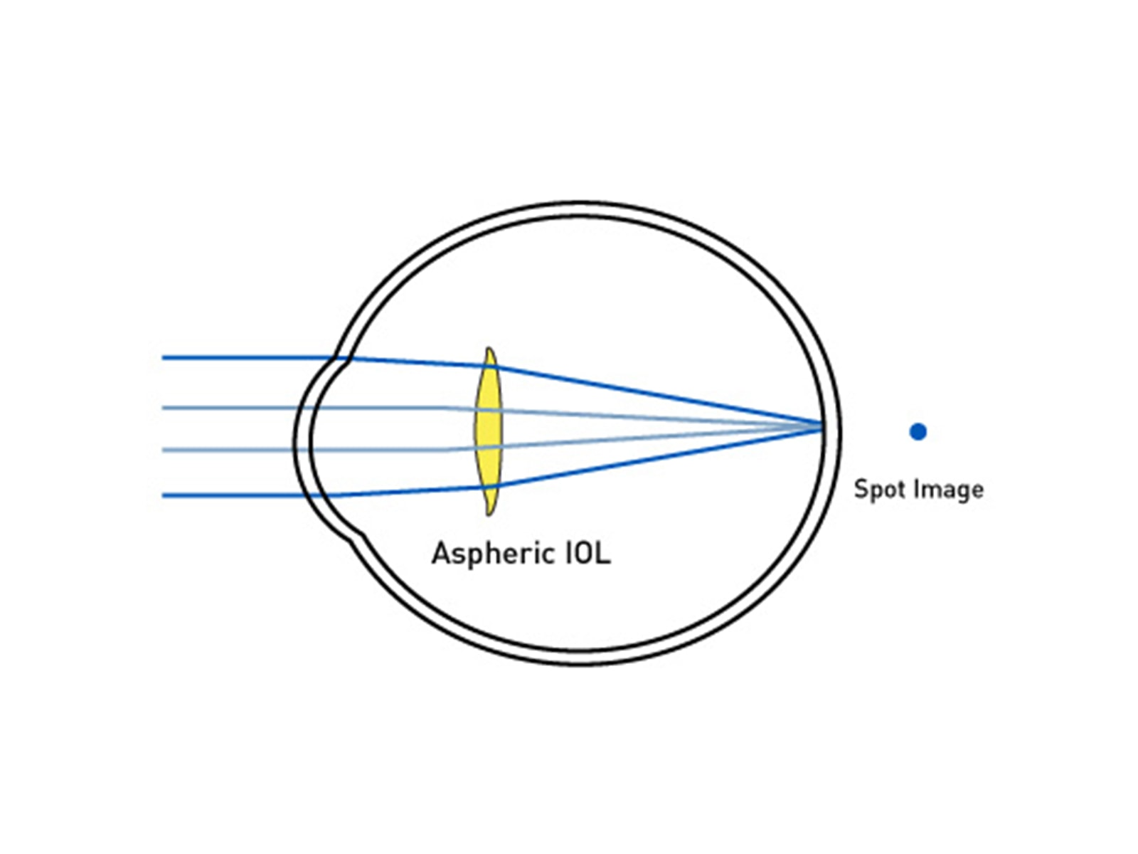 Optimized Aspheric IOL ABC Design
