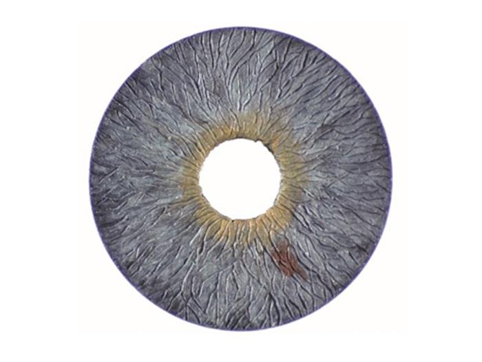 CustomFlex Artificial Iris