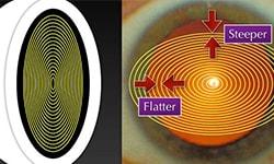 Understanding Anterior Segment Imaging