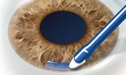 ReSure Ocular Sealant