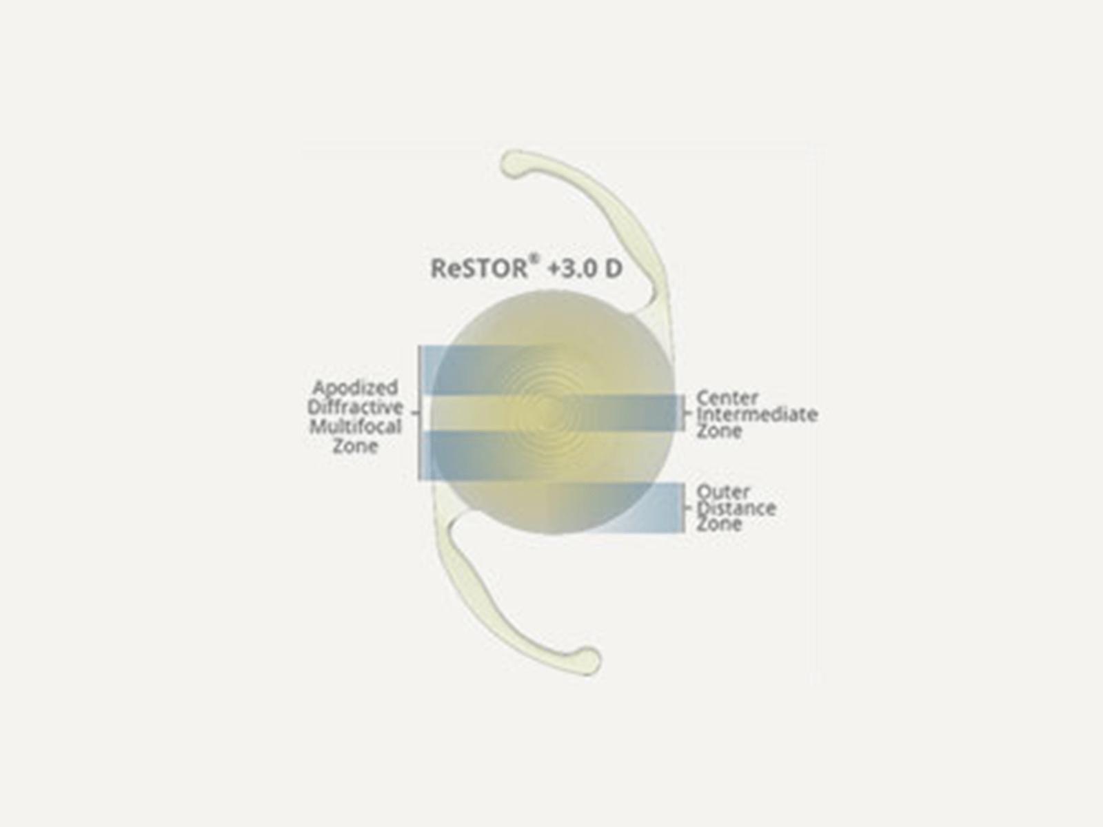 AcrySof IQ ReSTOR +3.0 D IOL (MN6AD1)
